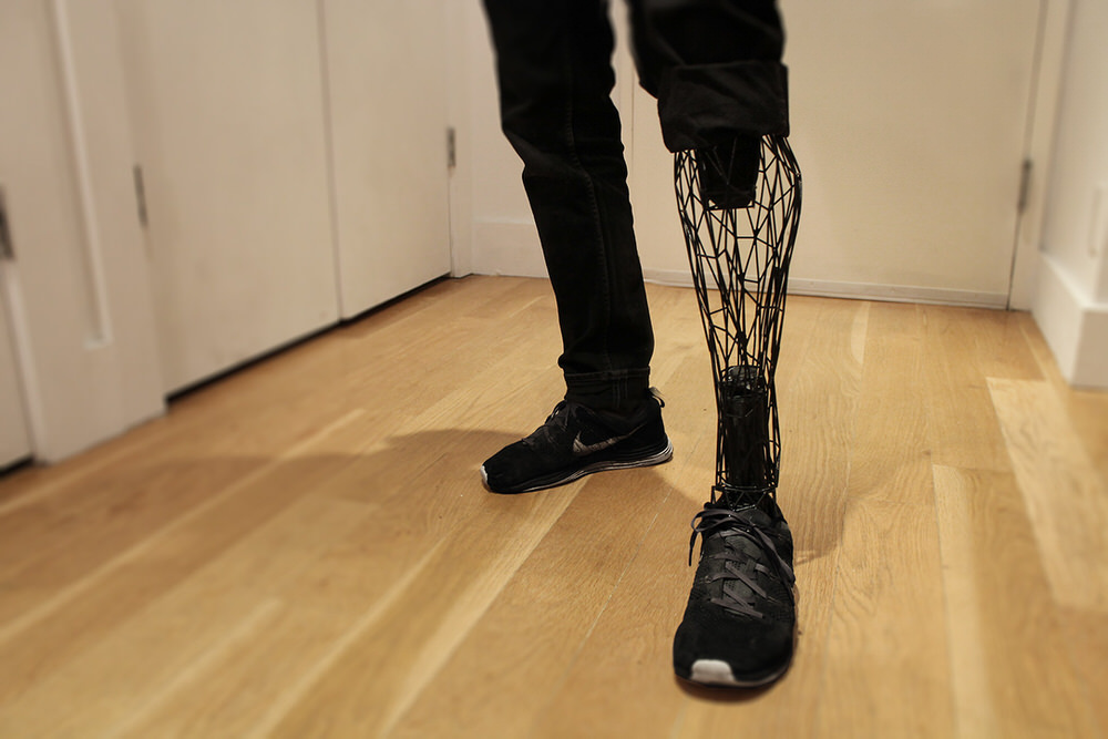 EXO 3D Printed Prosthetic Limbs by William Root