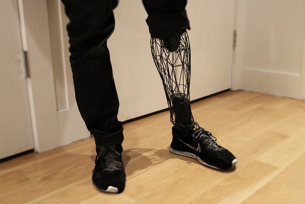 Standing with an Exo Prosthetic Lower Leg